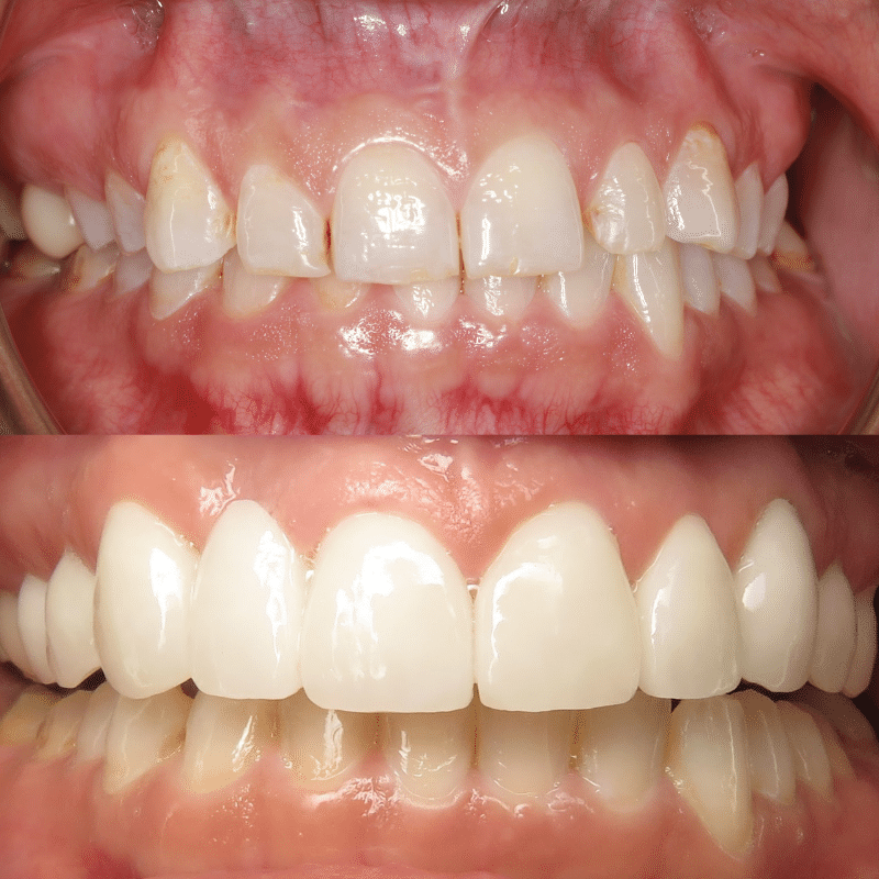 Before/after smile makeover Grand Junction
