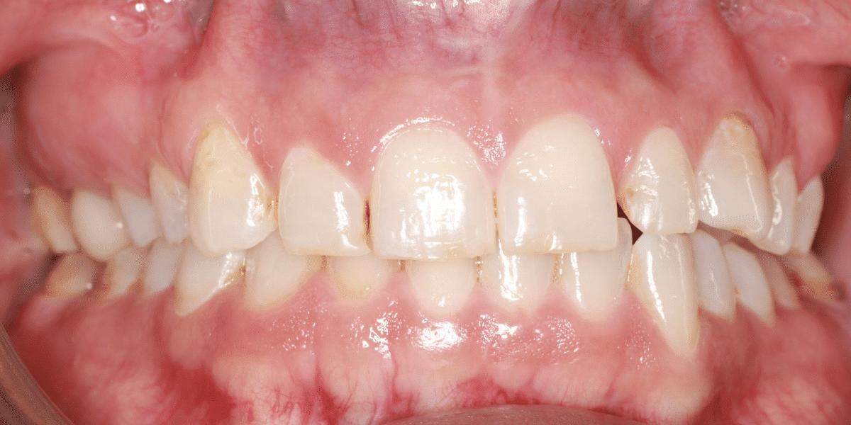 before dental crowns grand junction