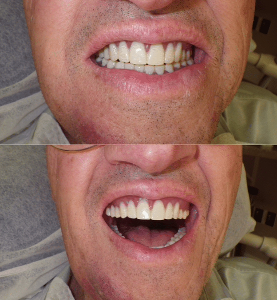 dentures Grand Junction